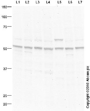 Western blot - AKT1 antibody (ab91505)