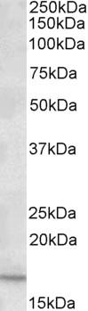 Western blot - Anti-CXCL2 antibody (ab91511)