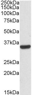 Western blot - CNN2 antibody (ab91513)