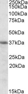 Western blot - Heme oxygenase 2 antibody (ab91515)