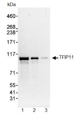 Western blot - TFIP11 antibody (ab91520)