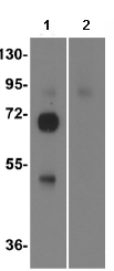 Western blot - Influenza A Virus Hemagglutinin H1 antibody (ab91531)