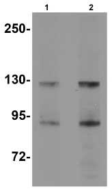 Western blot - KDM4B / JMJD2B antibody (ab91549)