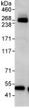 Immunoprecipitation - ABCA2 antibody (ab91571)