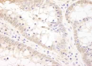 Immunohistochemistry (Formalin/PFA-fixed paraffin-embedded sections) - TCF12 antibody (ab91592)