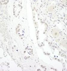 Immunohistochemistry (Formalin/PFA-fixed paraffin-embedded sections) - USP34 antibody (ab91617)