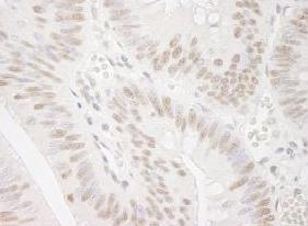 Immunohistochemistry (Formalin/PFA-fixed paraffin-embedded sections) - Smek1 antibody (ab91618)