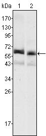 Western blot - Anti-alpha 1 Fetoprotein antibody [6E6] (ab91625)