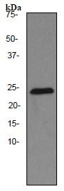 Western blot - Thymidine Kinase 1 antibody [EPR3194] (ab91651)