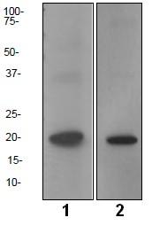 Western blot - LMO2 antibody [EP3257] (ab91652)