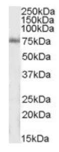 Western blot - IP3KC antibody (ab92283)