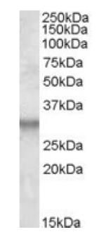 Western blot - ITM2B antibody (ab92284)
