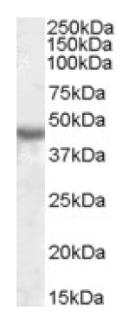 Western blot - KCNJ1 antibody (ab92285)
