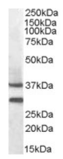 Western blot - MC5 Receptor antibody (ab92287)