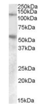 Western blot - Palladin antibody (ab92288)