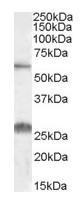 Western blot - Anti-SLC47A1 antibody (ab92295)