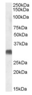 Western blot - SRD5A2 antibody (ab92297)