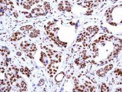Immunohistochemistry (Formalin/PFA-fixed paraffin-embedded sections) - PRMT1 antibody [EPR3292] (ab92299)