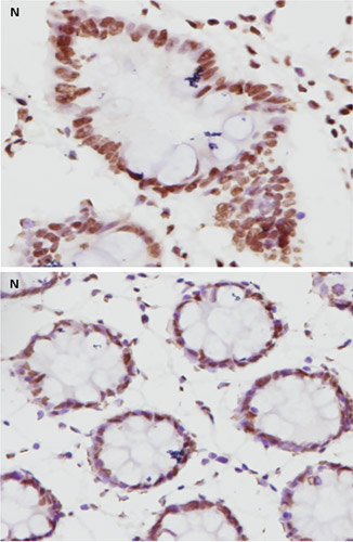 Immunohistochemistry (Formalin/PFA-fixed paraffin-embedded sections) - Anti-MLH1 antibody [EPR3894] (ab92312)