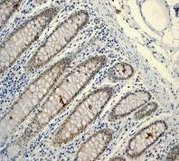 Immunohistochemistry (Formalin/PFA-fixed paraffin-embedded sections) - Lipin 1 antibody [EPR3725] (ab92316)