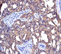 Immunohistochemistry (Formalin/PFA-fixed paraffin-embedded sections) - NM23A antibody [EPR3036] (ab92327)