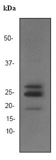 Western blot - FGF basic antibody [EP1735] (ab92337)