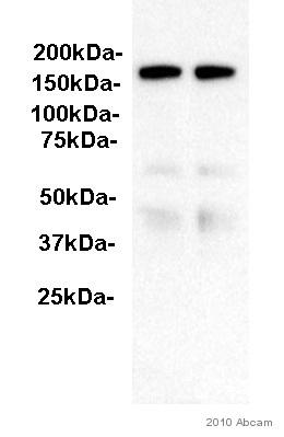 Western blot - ITIH4 antibody (ab92338)