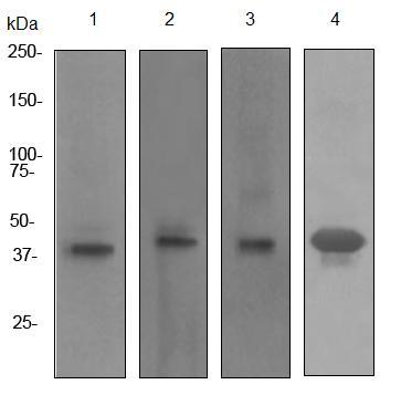 Western blot - Mesothelin antibody [PPI-2e(IHC)] (ab92347)