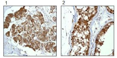 Immunohistochemistry (Formalin/PFA-fixed paraffin-embedded sections) - RanGAP1 antibody [EPR3295] (ab92360)