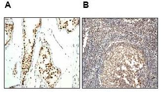 Immunohistochemistry (Formalin/PFA-fixed paraffin-embedded sections) - Ku70 antibody [EPR4027] (ab92450)