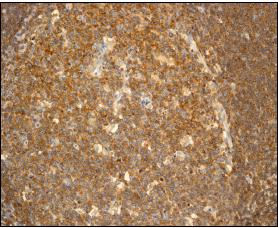 Immunohistochemistry (Formalin/PFA-fixed paraffin-embedded sections) - FKBP6 antibody [EPR3674] (ab92475)