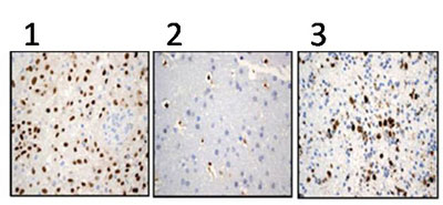 Immunohistochemistry (Formalin/PFA-fixed paraffin-embedded sections) - SOX2 antibody [EPR3131] (ab92494)