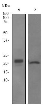 Western blot - CGB5 antibody [EPR3376] (ab92497)