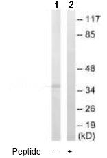 Western blot - AKR1C2 antibody (ab92521)