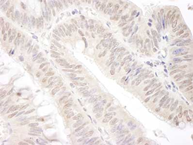 - Anti-Gemin 4 antibody (ab92535)