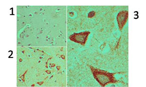 Immunohistochemistry (Formalin/PFA-fixed paraffin-embedded sections) - Dishevelled 3 antibody (ab92567)