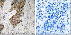 Immunohistochemistry (Formalin/PFA-fixed paraffin-embedded sections) - CBR1 antibody (ab92576)