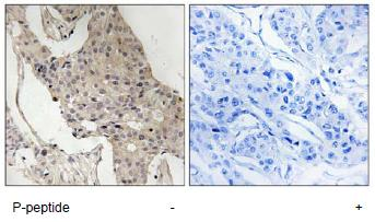 Immunohistochemistry (Formalin/PFA-fixed paraffin-embedded sections) - GAB2 (phospho S623) antibody (ab92578)