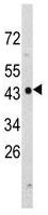 Western blot - NDRG1 antibody (ab92584)