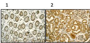 Immunohistochemistry (Formalin/PFA-fixed paraffin-embedded sections) - TCP1 alpha antibody [EPR4081] (ab92587)