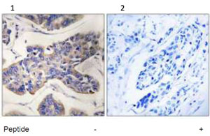 Immunohistochemistry (Formalin/PFA-fixed paraffin-embedded sections) - TAOK1 antibody (ab92601)