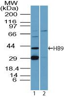 Western blot - HB9/HLXB9 antibody (ab92606)