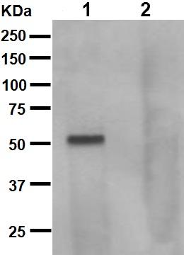 Western blot - Tau (phospho S262) antibody [EPR2454] (ab92627)