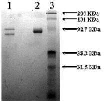 SDS-PAGE - Vitronectin protein (Biotin) (Human) (ab92639)
