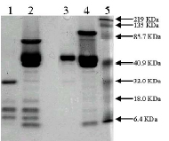 SDS-PAGE - Urokinase protein (Active) (ab92641)