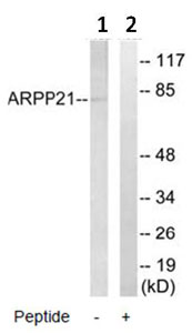 Western blot - ARPP21 antibody (ab92647)