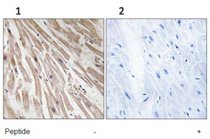 Immunohistochemistry (Formalin/PFA-fixed paraffin-embedded sections) - ARPP21 antibody (ab92647)