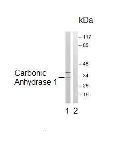 Western blot - Carbonic Anhydrase I antibody (ab92649)