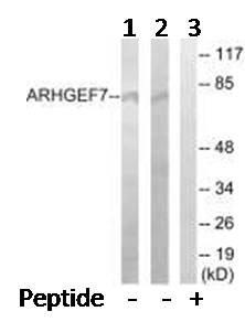 Western blot - ARHGEF7 antibody (ab92657)