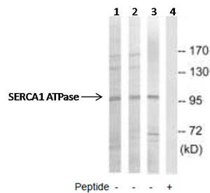 Western blot - SERCA1 ATPase antibody (ab92666)